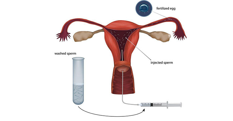 Artificial Insemination in Pune